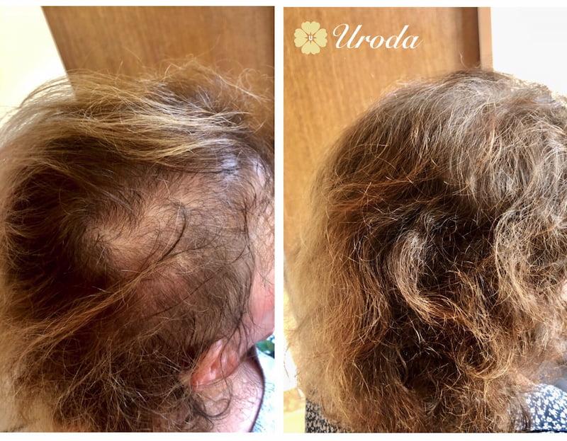 zdjęcie przed i po zabiegu trychologicznego
